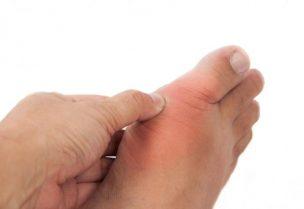 النقرس من أشكال التهاب المفاصل