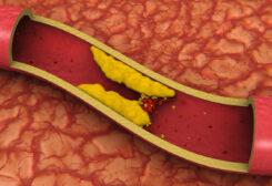 نصائح لخفض الكوليسترول المرتفع