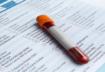 تحليل اليود في الدم