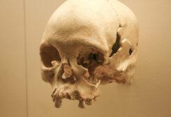 جمجمة تكشف عن عمل جراحي فاشل قبل 5 آلاف عام