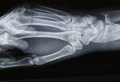 """أقدم حالة لـ """"مرض تصخر العظام"""""""